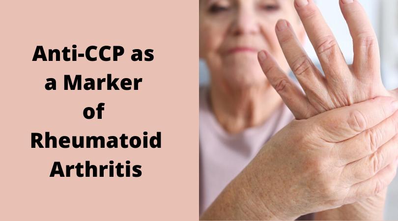 Anti-CCP as a Marker of Rheumatoid Arthritis